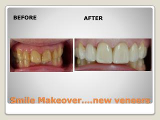 Smile Makeover….new veneers
