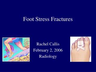 Foot Stress Fractures
