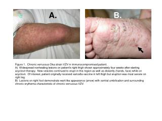 Figure 1.  Chronic verrucous Oka strain VZV in immunocompromised patient.