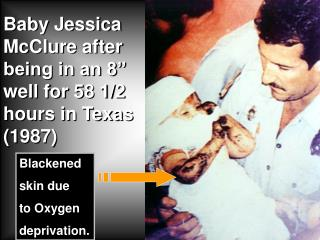 "Baby Jessica McClure after being in an 8"" well for 58 1/2 hours in Texas (1987)"