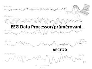 EEG Data  Processor /pr?m?rov�n�