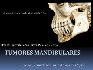 Tumores mandibulares