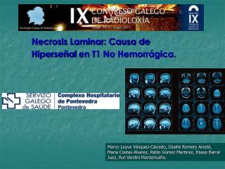Necrosis Laminar: Causa de  Hiperseñal  en T1 No Hemorrágica.