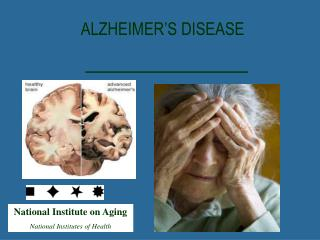 National Institute on Aging National Institutes of Health