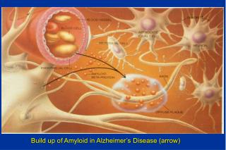 Build up of Amyloid in Alzheimer's Disease (arrow)