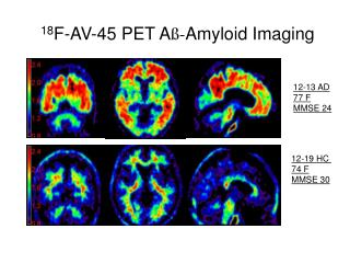 18 F-AV-45 PET A ß- Amyloid Imaging