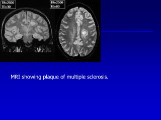 MRI showing plaque of multiple sclerosis.