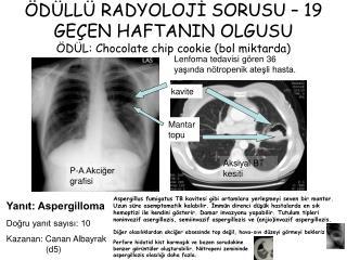 ÖDÜLLÜ RADYOLOJİ SORUSU – 19 GEÇEN HAFTANIN OLGUSU ÖDÜL: Chocolate chip cookie (bol miktarda)