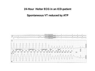 24-Hour  Holter ECG in an ICD-patient Spontaneous VT reduced by ATP