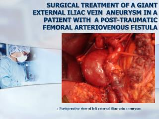 : Perioperative view of left external iliac vein aneurysm