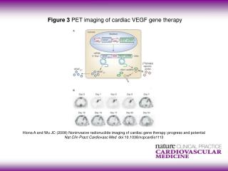 Figure 3  PET imaging of cardiac VEGF gene therapy
