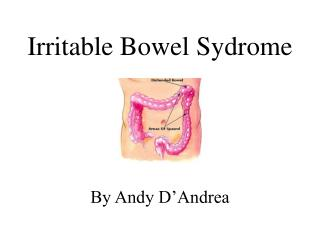 Irritable Bowel Sydrome