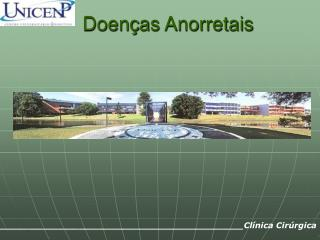 Doen � as Anorretais