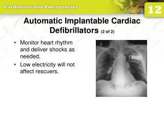 Automatic Implantable Cardiac Defibrillators  (2 of 2)