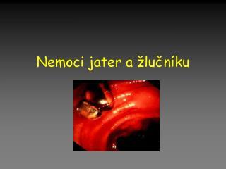 Nemoci jater a žlučníku