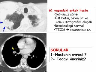 61 yaşındaki erkek hasta Sağ omuz ağrısı Üst batın, beyin BT ve    kemik sintigrafisi olağan