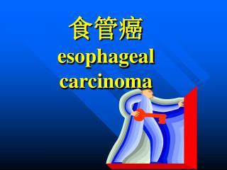 食管癌 esophageal carcinoma