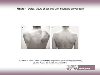 Figure 1   Dorsal views of patients with neuralgic amyotrophy