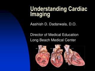 Understanding Cardiac  Imaging