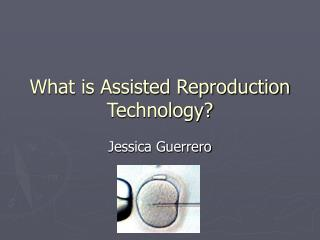 What is Assisted Reproduction Technology