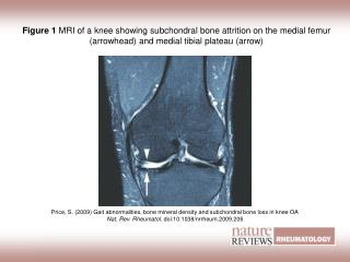 Price, S. (2009) Gait abnormalities, bone mineral density and subchondral bone loss in knee OA