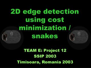 2D edge detection using cost minimization / snakes