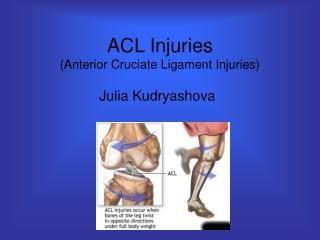 ACL Injuries (Anterior Cruciate Ligament Injuries)