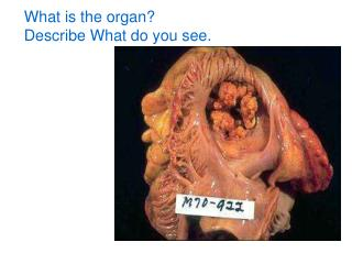 What is the organ? Describe What do you see.