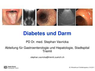 Diabetes und Darm PD Dr. med. Stephan Vavricka