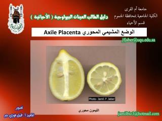 الوضع المشيمي المحوري  Axile Placenta