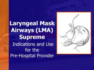 Laryngeal Mask Airways (LMA) Supreme Indications and Use for the Pre-Hospital Provider