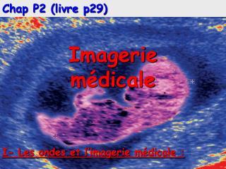 Chap P2 (livre p29) Imagerie m�dicale