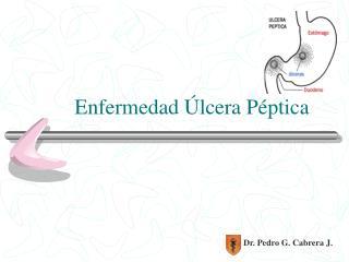 Enfermedad  Úlcera Péptica