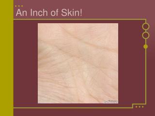 An Inch of Skin!
