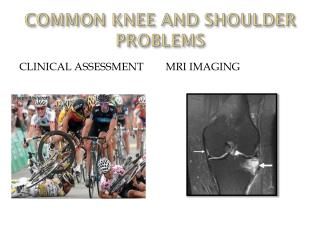 COMMON KNEE AND SHOULDER PROBLEMS