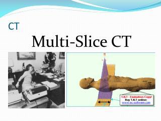 Multi-Slice CT