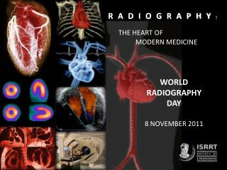 WORLD RADIOGRAPHY  DAY  8 NOVEMBER 2011