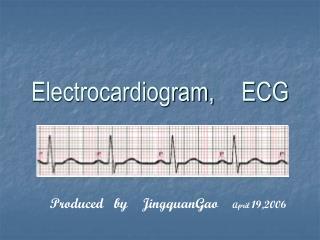 Electrocardiogram, ECG