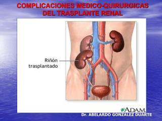 COMPLICACIONES MEDICO-QUIRURGICAS DEL TRASPLANTE RENAL