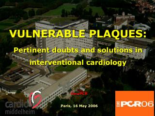 VULNERABLE PLAQUES:  Pertinent doubts and solutions in interventional cardiology