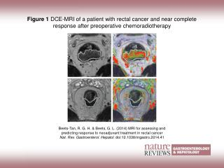 Figure 1  DCE-MRI of a patient with rectal cancer and near complete