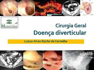 Cirurgia Geral Doença diverticular