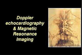 Doppler echocardiography & Magnetic Resonance Imaging