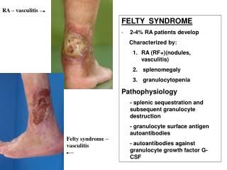 FELTY  SYNDROME 2-4% RA patients develop      Characterized by: RA (RF+)(nodules, vasculitis)