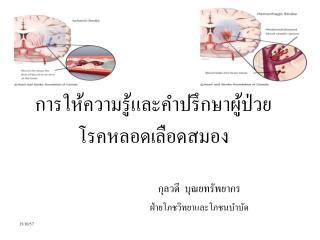 การให้ความรู้และคำปรึกษาผู้ป่วย โรคหลอดเลือดสมอง