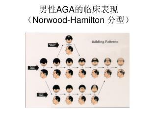 男性 AGA 的临床表现 ( Norwood-Hamilton  分型)