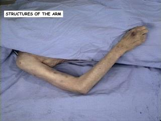 STRUCTURES OF THE ARM