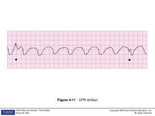 Figure 4-11    CPR Artifact