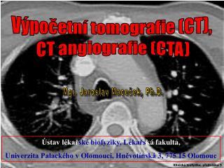 Výpočetní tomografie (CT),  CT angiografie (CTA)