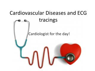 Cardiovascular Diseases and ECG tracings